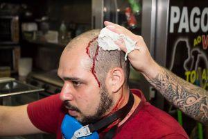 Tarek Mahammed, fotojornalista ferido durante o protesto.