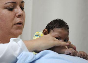São Paulo desrespeita regra federal e não reporta o nascimento de quase 200 bebês com microcefalia