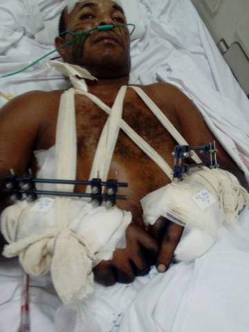 Aldeli de Jesus Ribeiro, que teve as mãos quase arrancadas a golpes de facão.