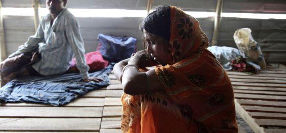 Una fotografía de una mujer quemada con ácido en Bangladesh.
