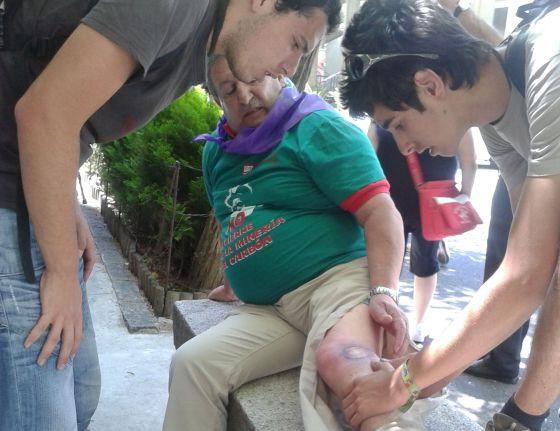 Un minero jubilado de Gijón muestra sus heridas.
