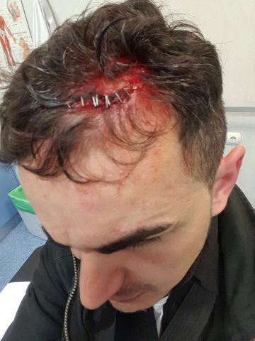 Uno de los agentes heridos en la revuelta registrada en Tetuán.