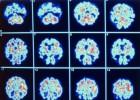 Hijos de enfermos de alzhéimer ayudan a adelantarse a la dolencia