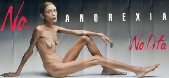 Ha fallecido Isabelle Caro, enferma de anorexia desde los 13 años, quien se dio a conocer en 2007 a través de una campaña publicitaria de la firma de ropa Benetton que pretendía concienciar sobre el horror de esta dolencia.