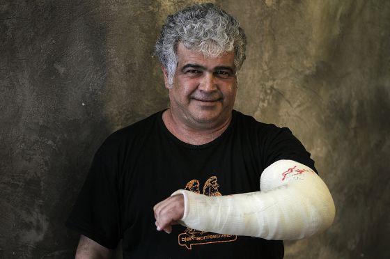 Jaled Jalifa exhibe el brazo que le rompió la policía en una manifestación en Damasco. La foto fue tomada esta semana en Madrid.