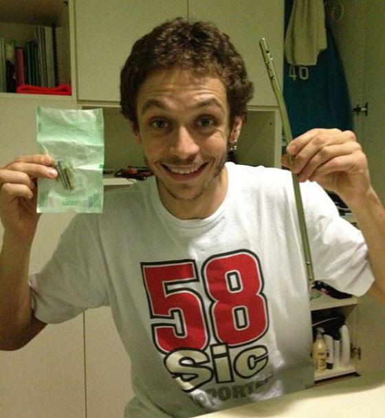 Rossi muestra los clavos y el tornillo que fijaron su tibia fracturada en 2010