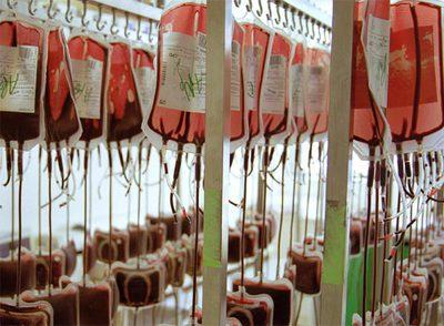 Con el enejecimiento aumenta la necesidad de sangre y disminuyen los donantes.