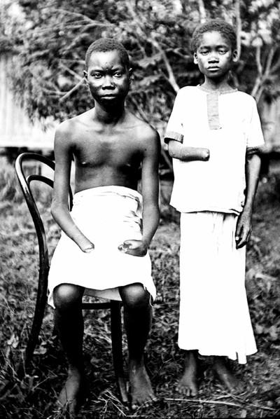 Mola y Yoka, que perdieron las manos por torturas de los soldados en el Congo de Leopoldo II alrededor de 1900.