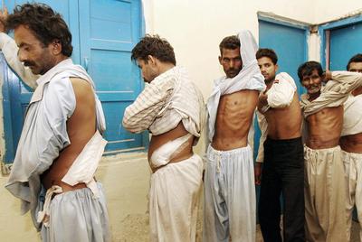 Varios paquistaníes muestran las cicatrices de la extracción de uno de sus riñones en una clínica clandestina y clausurada por la policía.