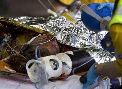 Varios de los heridos en el último accidente de Barajas presentaban quemaduras en gran parte de su cuerpo