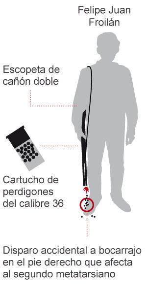 Froilán se dispara en un pie y es operado