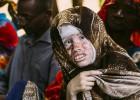 Historia de dos albinos: Salif Keita y la niña Rabiatou