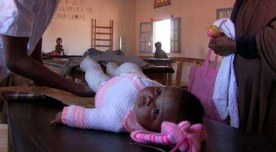 Los niños con raquitismo son atendidos por el equipo médico de Fami. Han de quitarles las escayolas para ver cómo evolucionan.