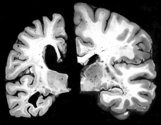 Un tratamiento elimina en monos las placas que pueden causar el alzhéimer