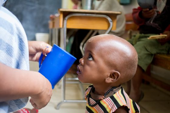 Kadir, de dos años, en un centro de alimentación terapéutica.