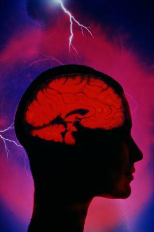 Échele la culpa al cerebro