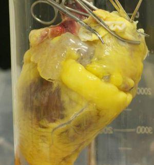 'Parches' de células madre para reparar infartos