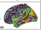 El alzhéimer no puede con los recuerdos musicales