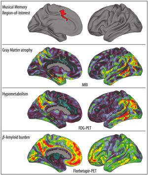 El gráfico muestra (en rojo, arriba) el giro cingulado anterior donde se almacenan los recuerdos musicales. Más abajo, visión bilateral de tres biomarcadores de Alzhéimer, en rojo las más afectadas.
