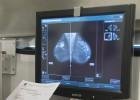 Inmunoterapia y quimio en un solo pinchazo para el cáncer de mama