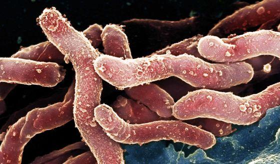 Fotografía de bacterias Helicobacter pylori.