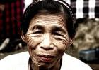 Una enfermedad rara desvela cómo retrasar el envejecimiento