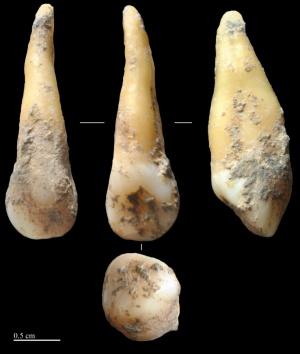 Diente de la mujer que vivió hace 7.400 años en la Cova Bonica.