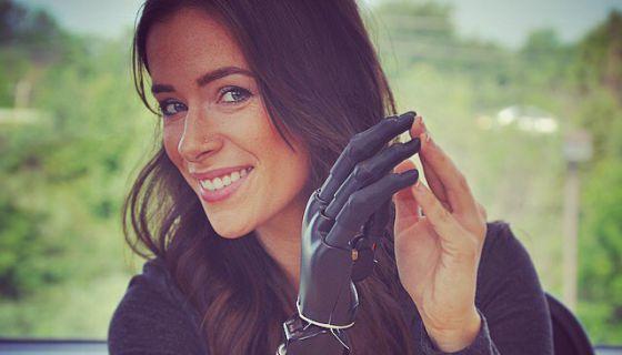 Rebekah Marine, la modelo del brazo biónico