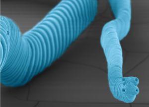 Imagen al microscopio del 'H. nana'