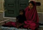 Mais de 18 milhões de mulheres sofrem de desnutrição grave
