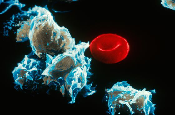 Células con leucemia (izquierda) junto a un glóbulo rojo.