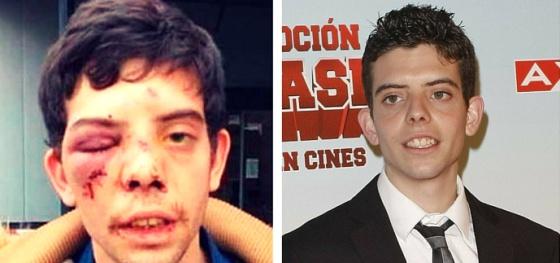 Javier Bodalo, El Rana en 'Cuentame', a quien le propinaron una paliza el 20 de noviembre de 2015