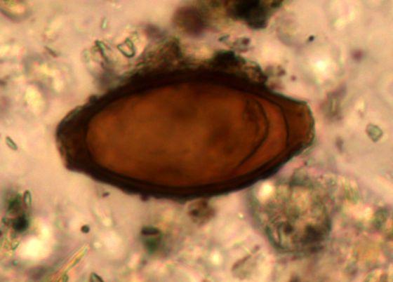 Huevo de tricocéfalo encontrado en un yacimiento arqueológico de una ciudad romana en la actual Turquía.