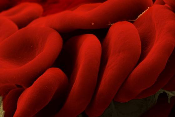 Glóbulos rojos observados con un microscopio electrónico de barrido.