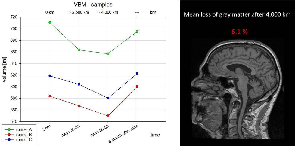 Parte del estudio presentado en el último Congreso Anual de Radiología, donde los científicos del Hospital Universitario de Ulm probaron la pérdida de masa cerebral después de una largar carrera (y su posterior recuperación).