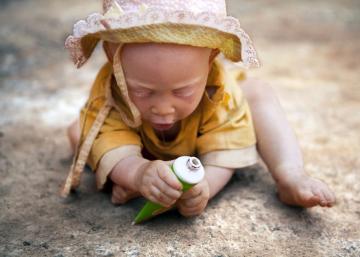 Asesinatos de albinos: la última, Eunice