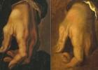 Miguel Ángel superó la artrosis en sus manos con más cincel y martillo