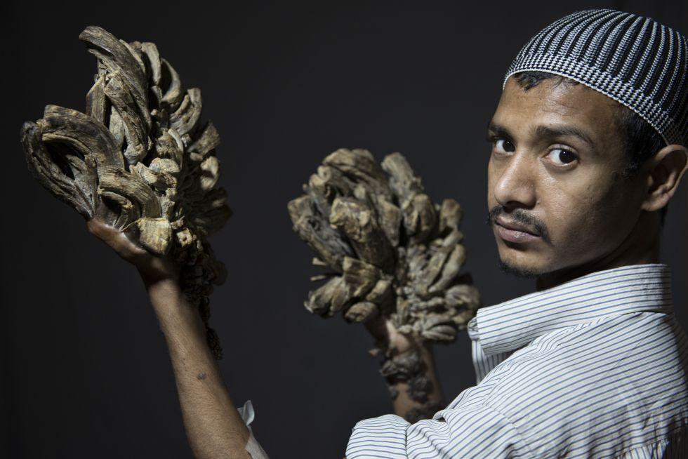 """Abul Bajadam muestra sus manos afectadas. Mañana se someterá a una primera intervención en Dacca para eliminar sus verrugas. """"Yo lo que quiero es poder abrazar a mi hija""""."""