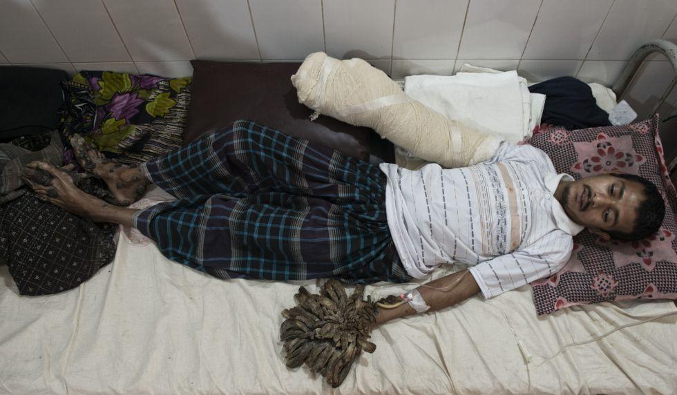 Abul Bajandar, en el hospital de Dacca donde se encuentra ingresado.