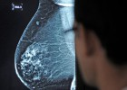 Los cirujanos plásticos sugieren la extirpación tras el tumor de mama