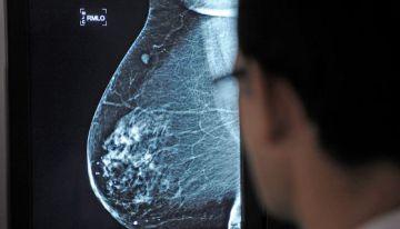 Un médico observa una mamografía en el hospital Virgen del Rocío de Sevilla.