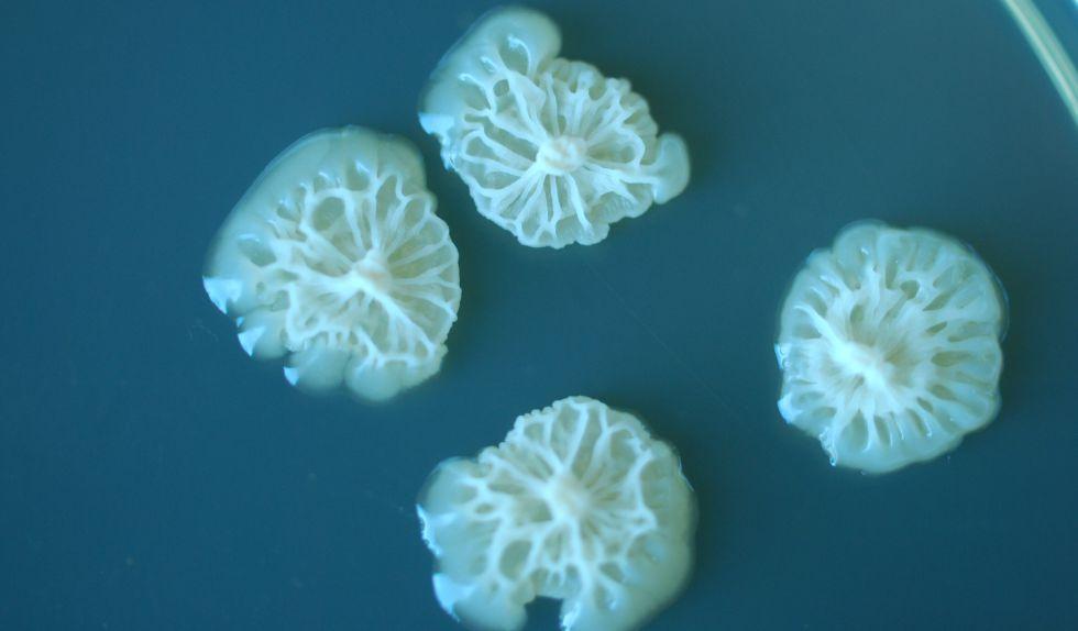 Aspecto de algunas bacterias estudiadas en la Estación Espacial Internacional.