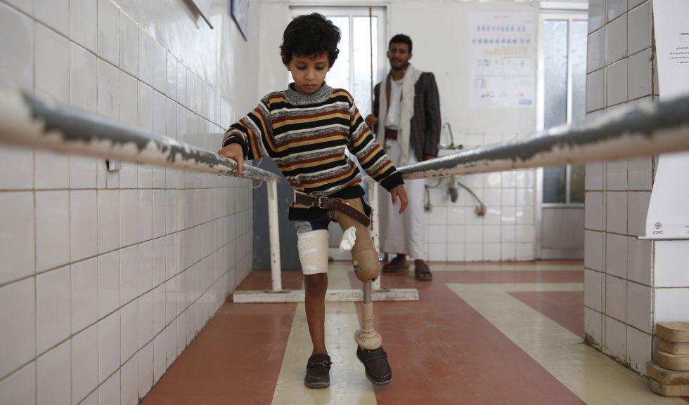 Un niño que perdió una pierna en la guerra de Yemen utiliza una prótesis en un centro de rehabilitación dirigido por el Gobierno en Sanaa, Yemen, el pasado 5 de marzo.