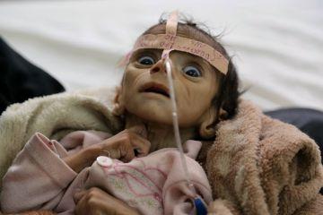Udai Faisal, que sufría desnutrición aguda severa, murió el 24 de marzo en el hospital Al-Sabeen de Sanaa, en Yemen.