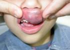 Un posible tratamiento contra el mal que desfigura la cara de niños