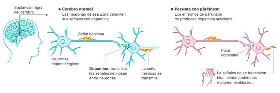 Dia Mundial del Parkinson