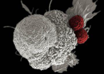 Virus contra el cáncer