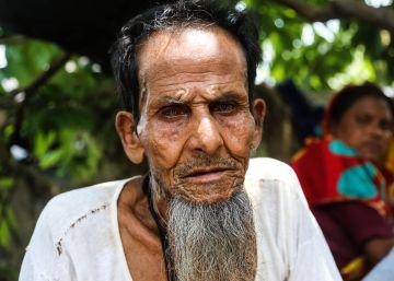 ¿Es usted un indocumentado de Myanmar?