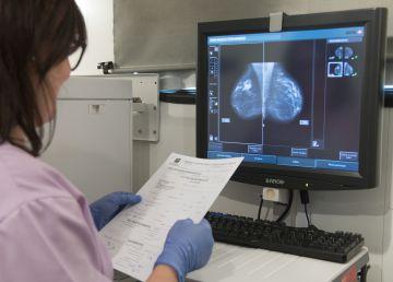 Una 'bola de cristal' para predecir el pronóstico de los tumores de mama