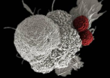 Un catálogo de tipos de cáncer para ayudar a personalizar el tratamiento